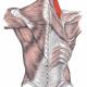 Levator Scapula and Shoulder Impingement
